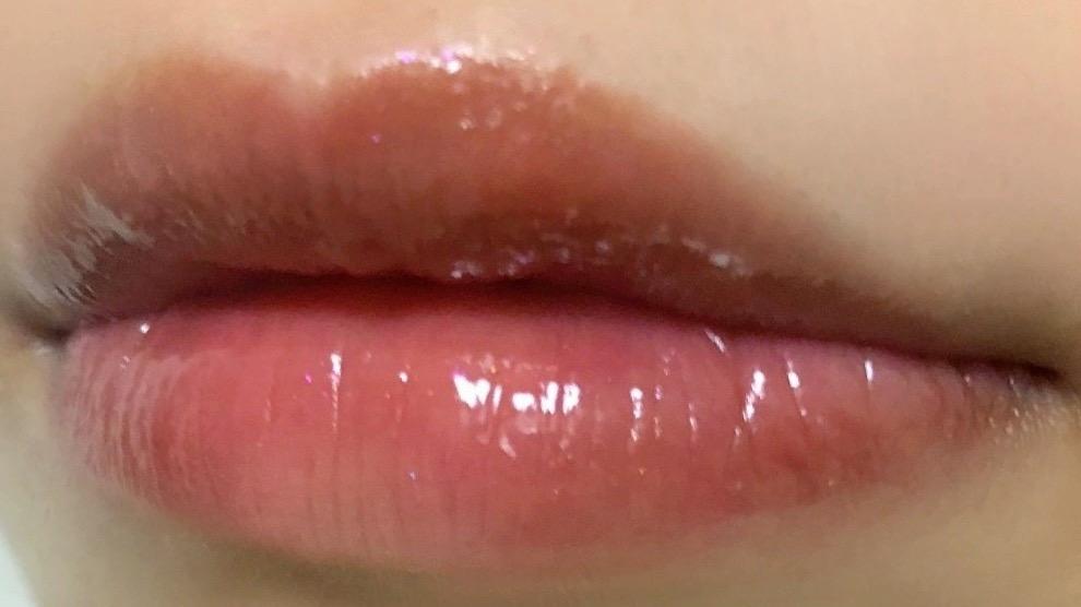 唇に縫った写真